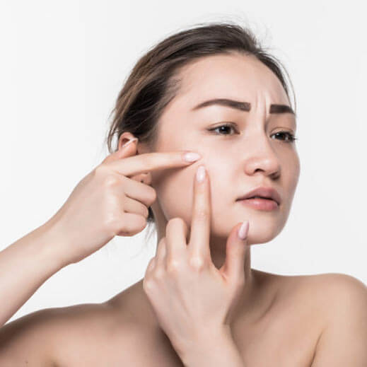 Acne Specialist in Cardiff